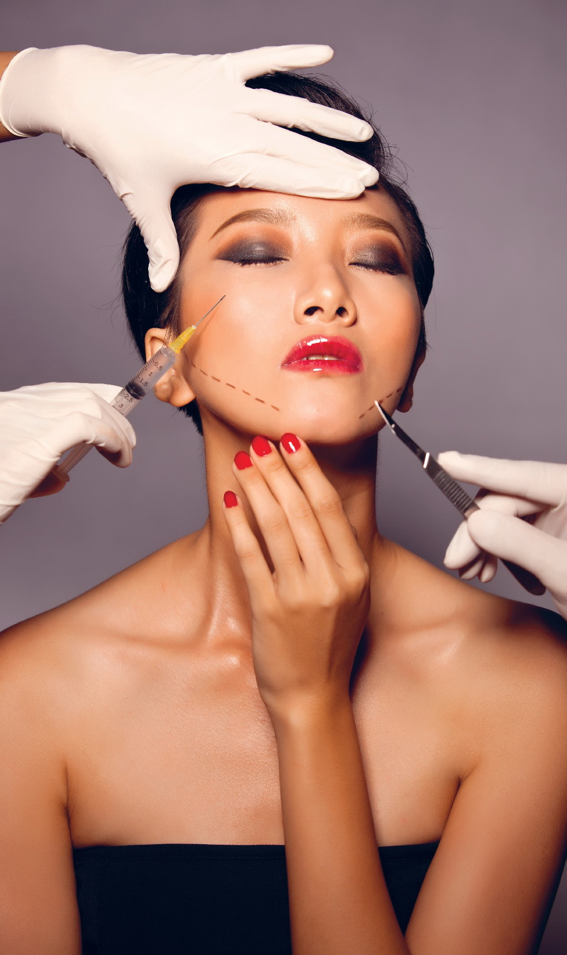 Giới hạn của Botox
