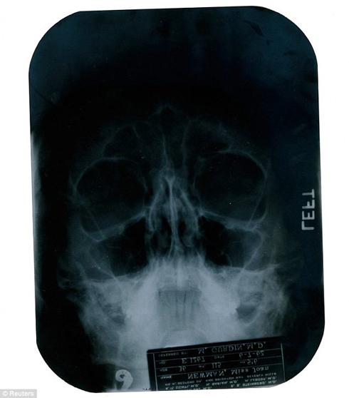 Một trong những tấm phim X-quang được cho là chụp lại quá trình phẫu thuật gắn sụn cằm cho Monroe