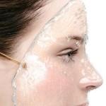 Da khô và 5 loại kem dưỡng da tốt nhất hiện nay