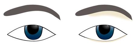 Highlight vùng bầu mắt
