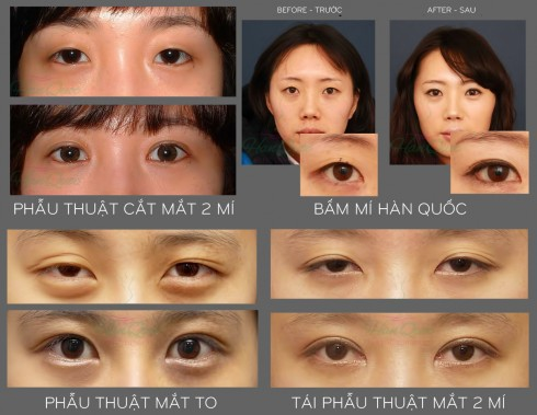 Mắt hai mí là chuẩn mực của sắc đẹp châu Á.