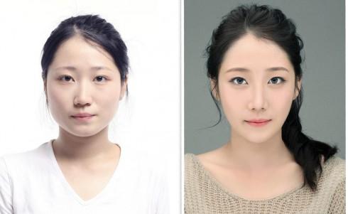 Sự khác biệt rõ rệt trong tổng thể khuôn mặt sau khi gọt cằm