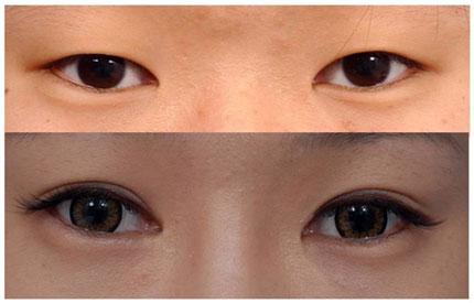 Phương pháp nhấn mí mắt thực hiện khá nhanh chóng và tiêu tốn một khoảng  tiền không lớn, phù hợp với các bạn gái ưa chuộng đôi mắt hai mí to tròn