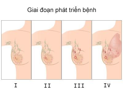 Hình ảnh minh họa từng giai đoạn phát triên của ung thư vú