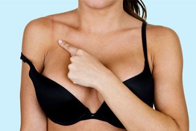 Áo ngực chật sẽ mang lại rất nhiều nguy cơ cho sức khỏe, ví dụ như ung thư vú,...