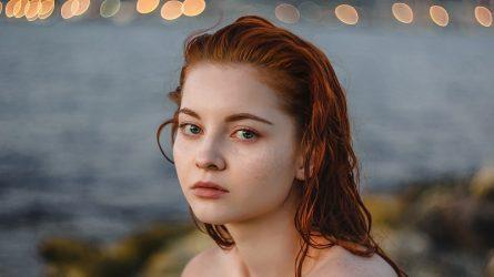 Những mẹo trị mụn ẩn hiệu quả trả lại làn da mịn màng cho phái đẹp
