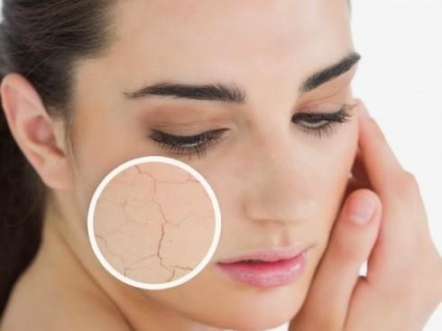 5 lưu ý về cách trị mụn hiệu quả dành cho da khô 1