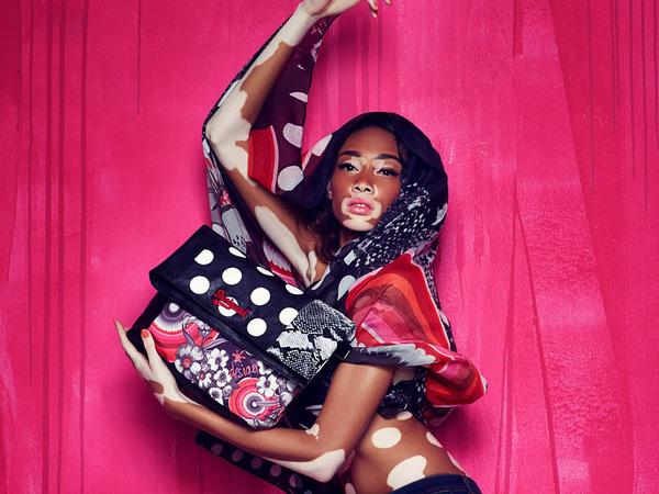 vẻ đẹp đạc biệt của làng thời trang Chantelle Brown Young