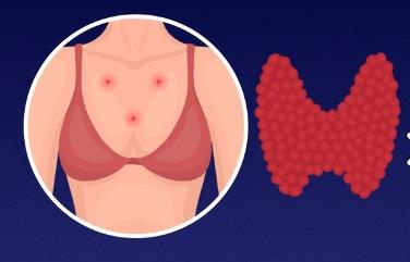 Mụn cơ thể và dấu hiệu sức khỏe xuống cấp ELLE VN