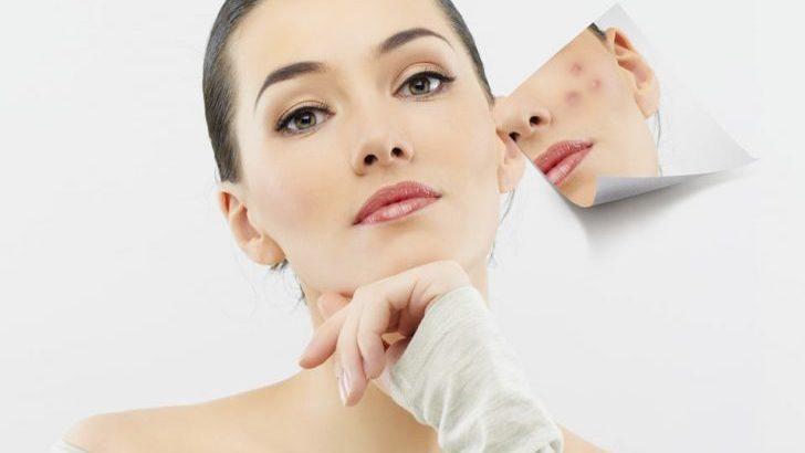 sáp vasaline trị mụn hiệu quả 2