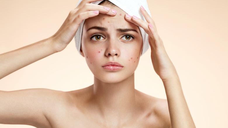Các đốt mụn đáng ghét được cho là sản sinh ra từ những lớp trang điểm dày trên da mặt