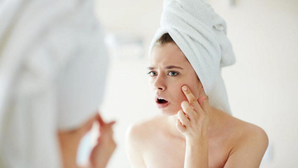 Lỗ chân lông bị tắc nghẽn sinh ra mụn là những hậu quả tất yếu của việc không tẩy trang trước khi đi ngủ