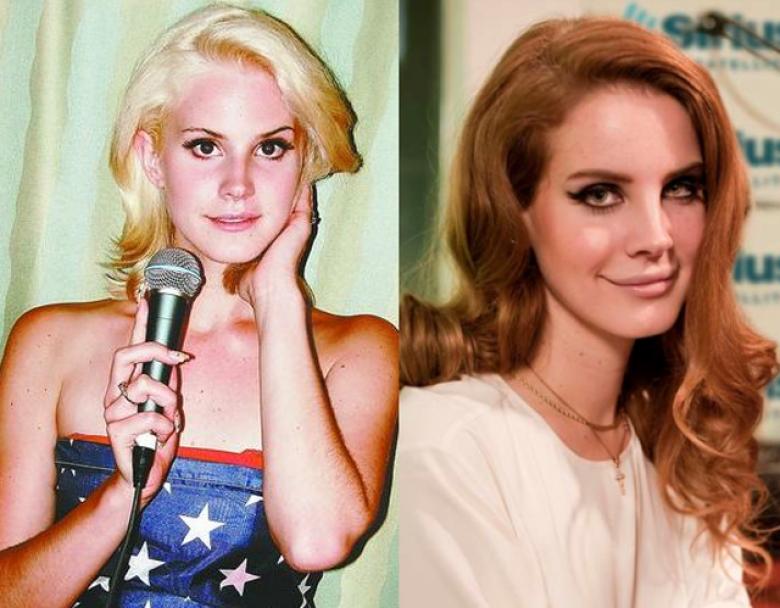 """Đôi môi khác lạ cùng đường nét gương mặt thay đổi là lý do nhiều người tin rằng """"hiện tượng âm nhạc """" Lana Del Rey đã thực hiện việc bơm môi và tiêm botox"""