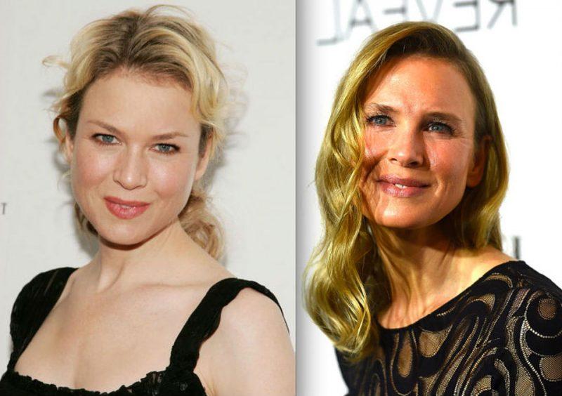 Sự thay đổi trên khuôn mặt của Renee Zellweger khiến nhiều người tự hỏi không biết là hậu quả của việc giảm cân hay tiêm botox