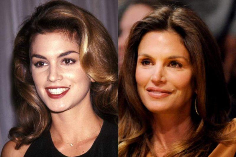 Tuy không quá xuất sắc nhưng quả thực botox đã giúp đỡ nữ diễn viên khá nhiều trong việc trở nên trẻ trung hơn so với tuổi thật
