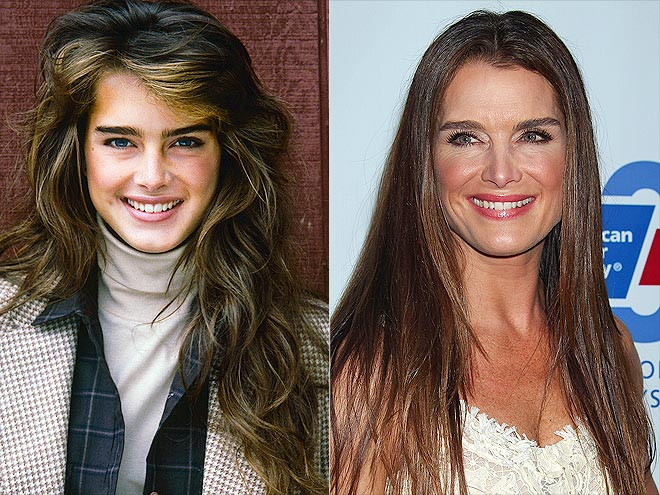 Brooke Shields và khuôn mặt trẻ hơn tuổi thật nhờ liệu pháp tiêm botox