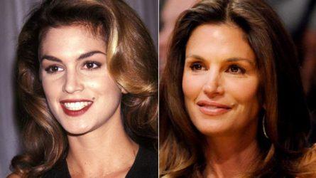 Tiêm botox lợi và hại ra sao? Cứ nhìn các sao nữ sau là sẽ rõ