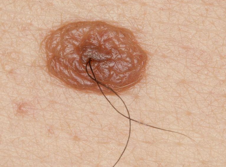 Những nốt ruồi đáng sợ và mối liên can tới ung thư da