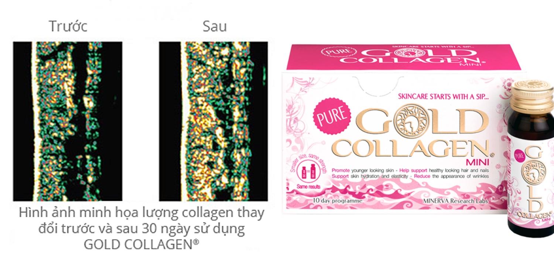"""Gold Collagen: Bí quyết vàng để """"trẻ mãi không già"""""""