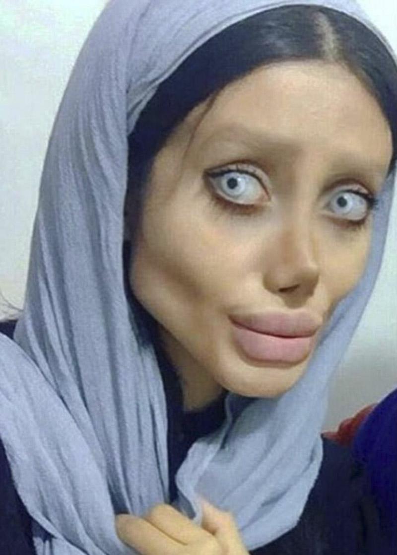 Nổi tiếng sau 50 lần phẫu thuật thẩm mỹ để trở thành Angelina Jolie