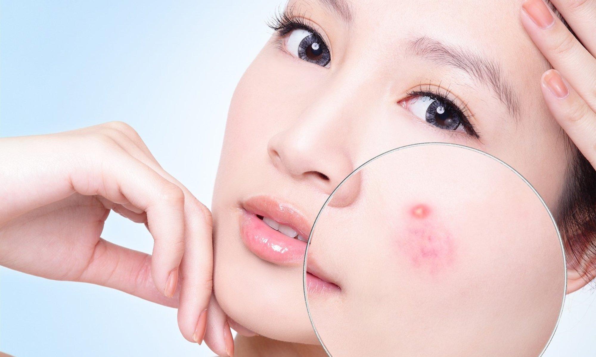 tác dụng thần kì của dầu hạnh nhân đối với làn da của bạn1