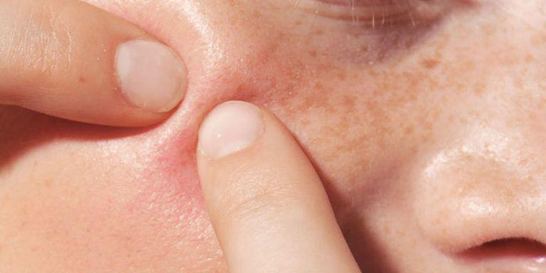 Kem trị mụn nào tốt: Benzoyl peroxide hay Salicylic acid?