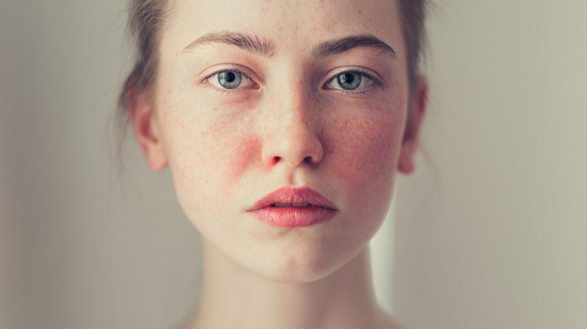 Truy tìm 4 nguyên nhân và cách trị dị ứng da mặt