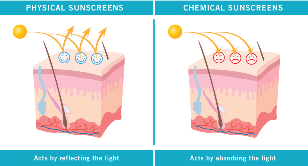 Bạn phù hợp kem chống nắng hoá học hay kem chống nắng vật lý?