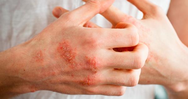 Các loại tinh dầu dưỡng da giúp dưỡng ẩm phù hợp với da chàm
