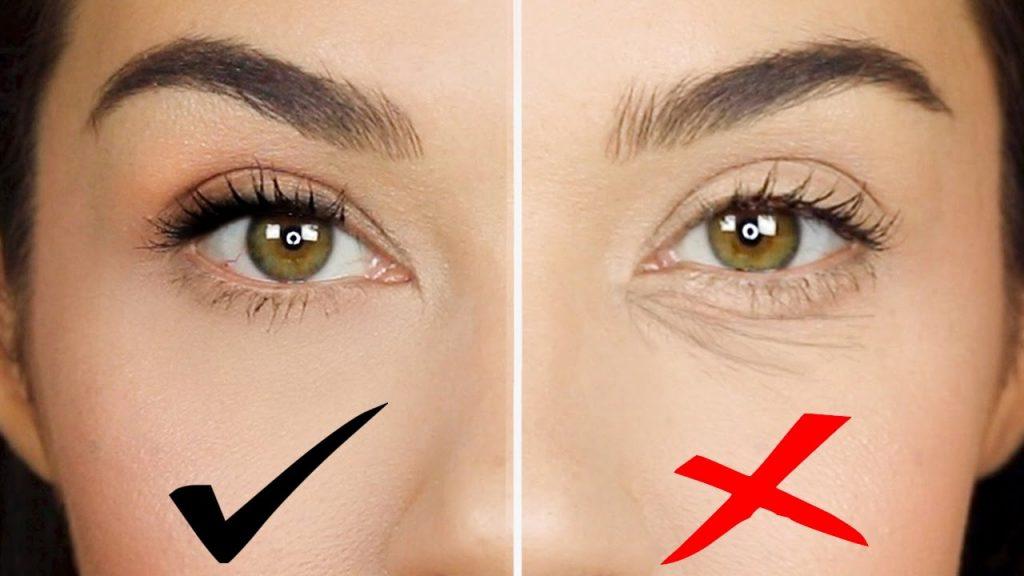 Che khuyết điểm quầng thâm mắt 5