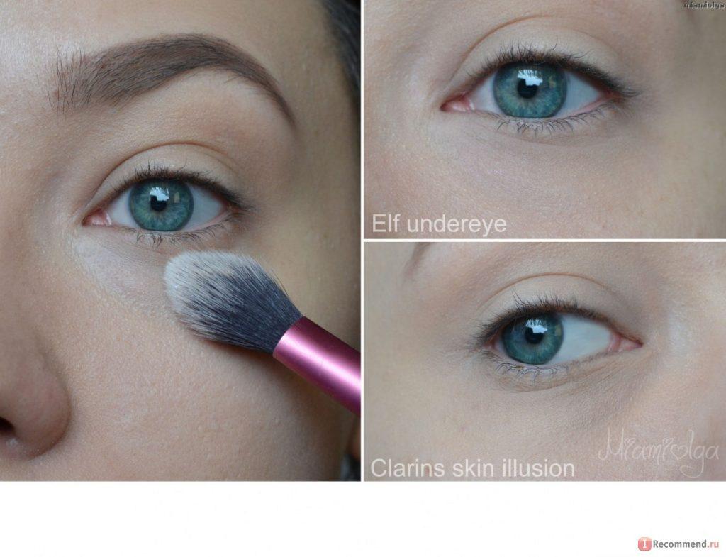Che khuyết điểm quầng thâm mắt 6