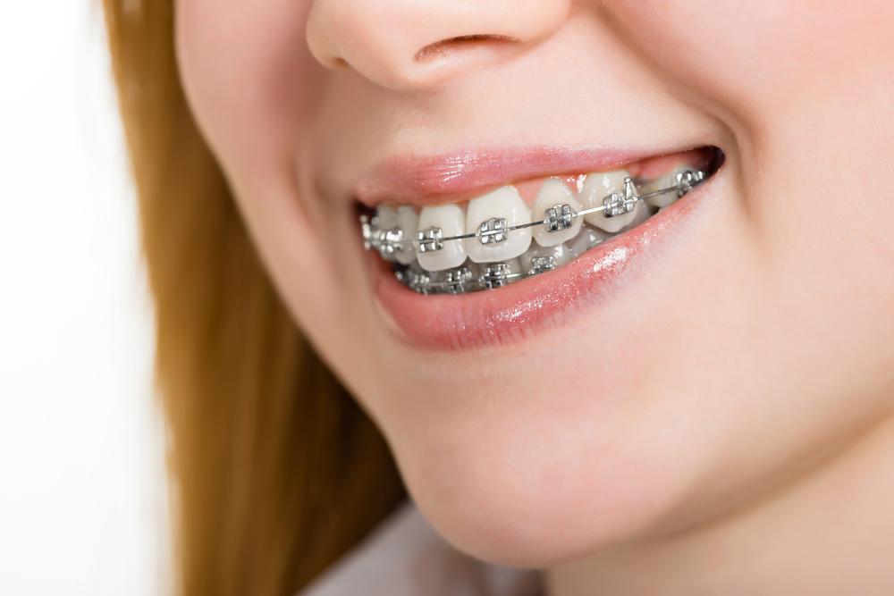 niềng răng mắc cài hàm răng
