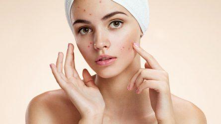 Cách trị sẹo mụn an toàn, làm dịu và nâng tông màu da