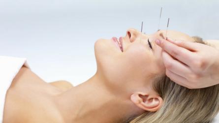 Châm cứu da mặt - Phương pháp trẻ hóa da có nguồn gốc lâu đời