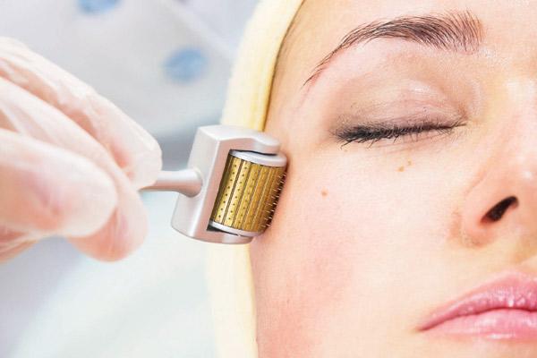 Phương pháp lăn kim làn da