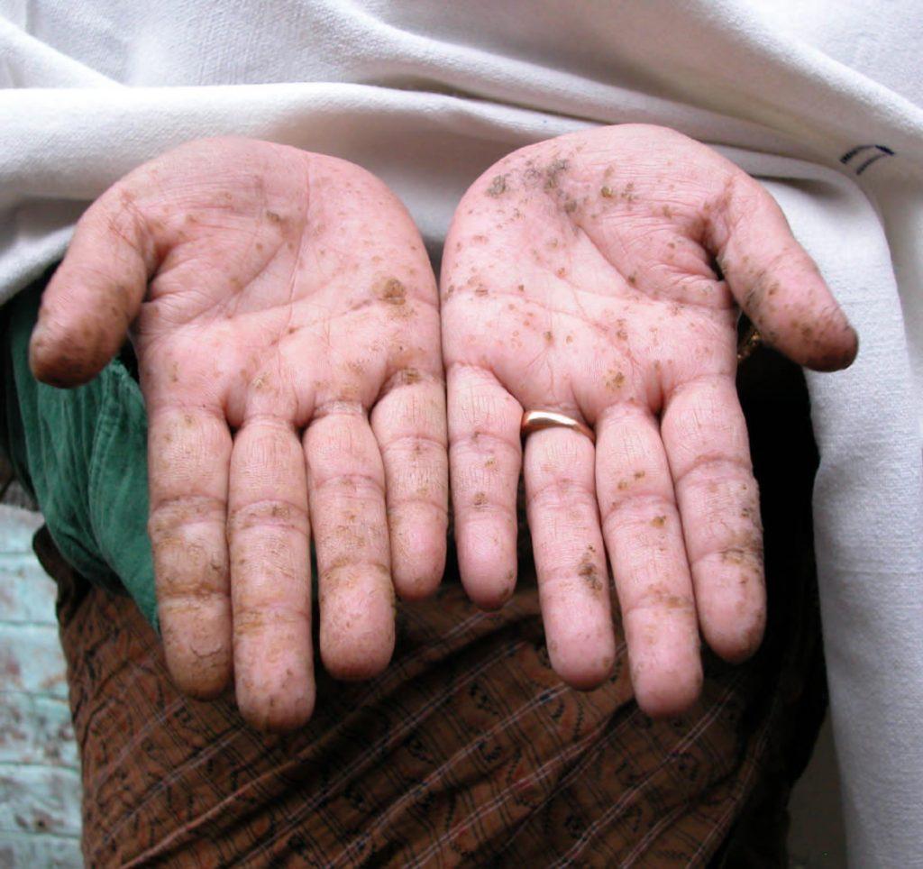 Sử dụng nước nhiễm phèn và asen lâu ngày có thể gây các bệnh: da khô bong tróc, bệnh đường ruột, rối loạn sắc tố da, tim mạch và thậm chí là ung thư.
