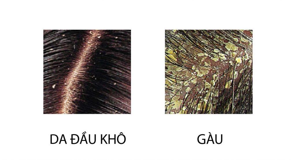 Phân biệt da đầu khô và gàu 2
