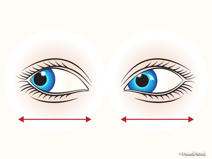 nhức mỏi mắt 03