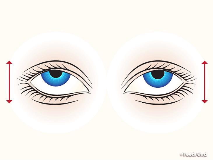nhức mỏi mắt 04