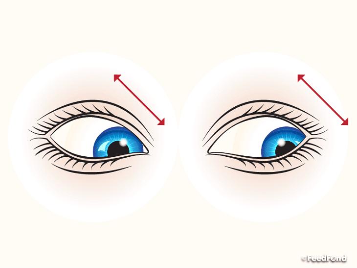 nhức mỏi mắt 05