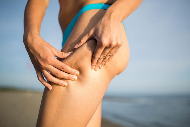 05 nguyên nhân và điều trị cellulite sần vỏ cam