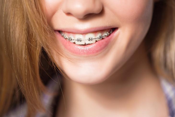 02 nhật ký niềng răng cần chuẩn bị những gì trước khi chỉnh nha thẩm mỹ phần 2