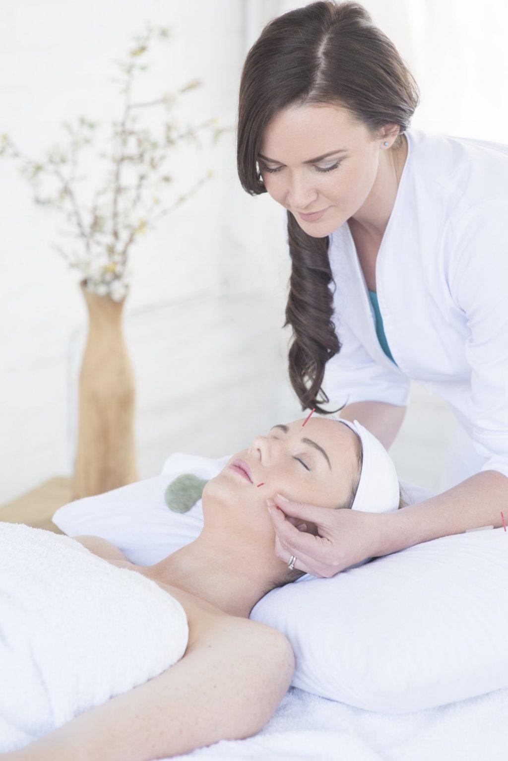 trẻ hóa làn da bằng phương pháp châm cứu da mặt