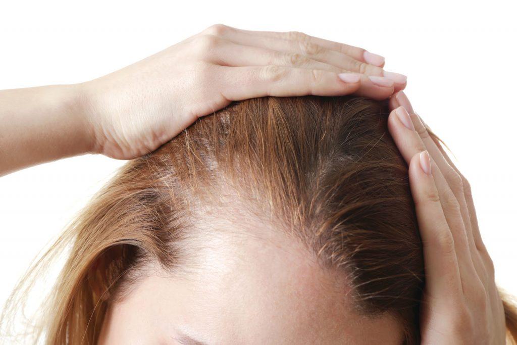 mái tóc cảnh báo vấn đề sức khỏe 03a