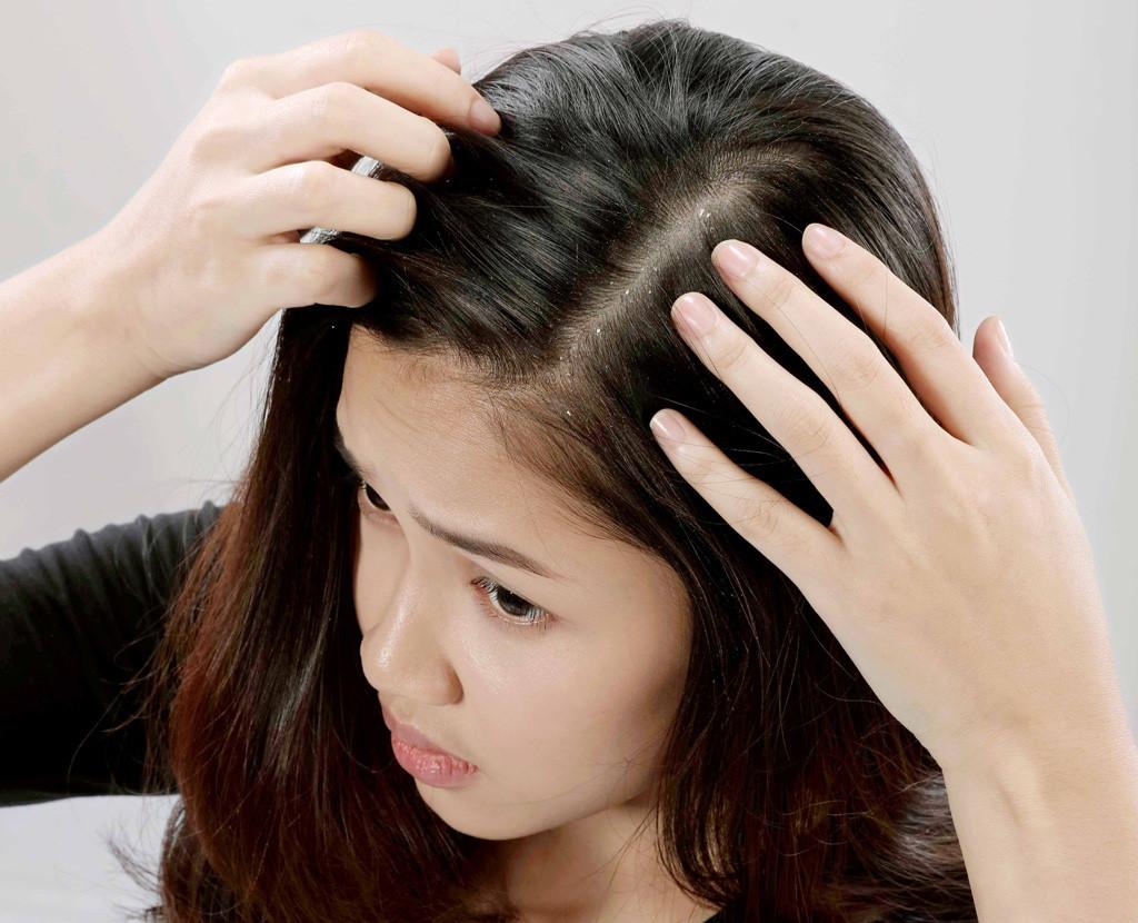 mái tóc cảnh báo vấn đề sức khỏe 05