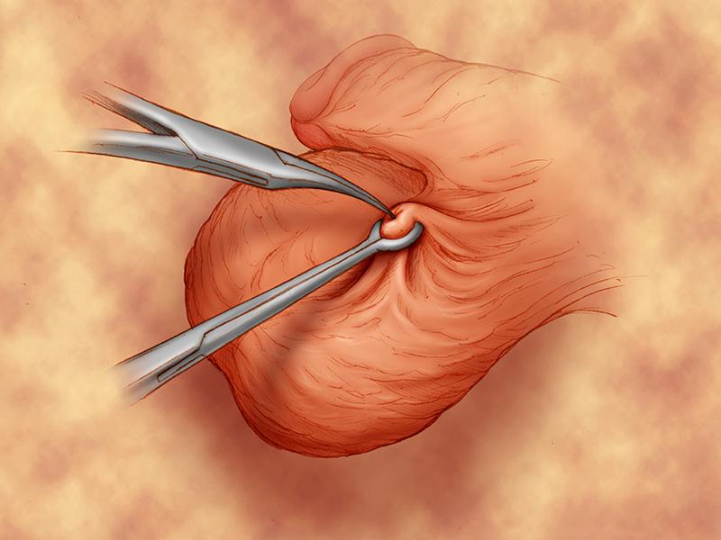 phương pháp tránh thai - thắt ống dẫn tinh