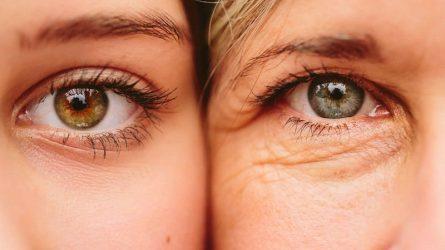 Bóc mẽ những sai lầm thường gặp khi dùng kem dưỡng mắt