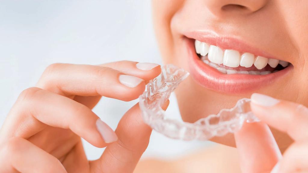 chăm sóc răng miệng - miếng niềng răng trong suốt