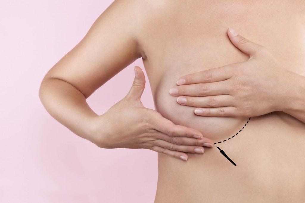 ung thư vú - đôi tay ôm ngực