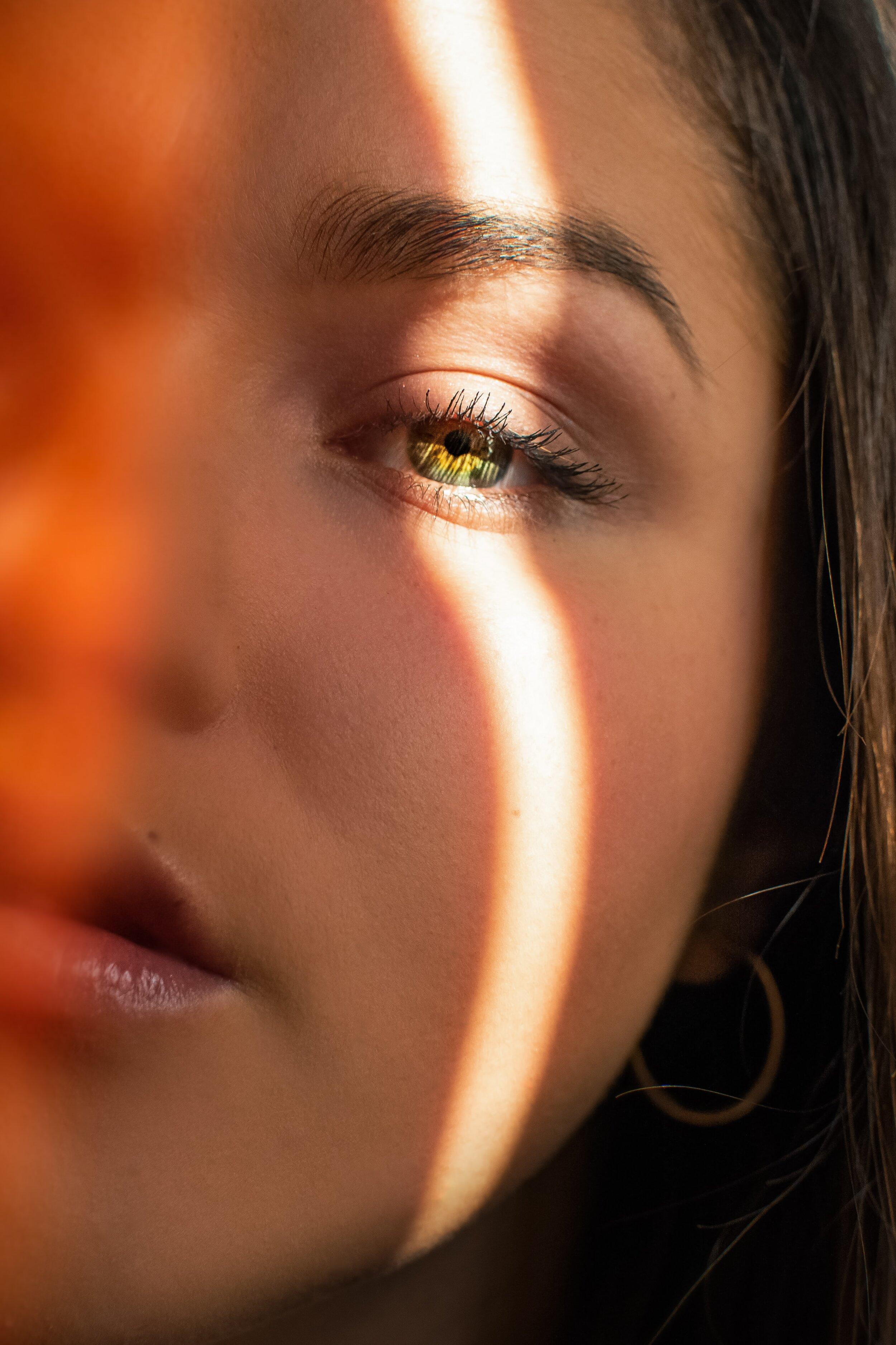 Cách dùng retinol-Vệt nắng trên mặt cô gái.